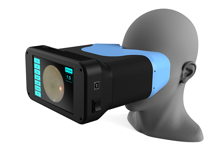 OWL - An ultra low-cost, portable screening device for retinal diseases and glaucoma which captures high quality retinal images, which is married with the latest machine learning models to process those images.