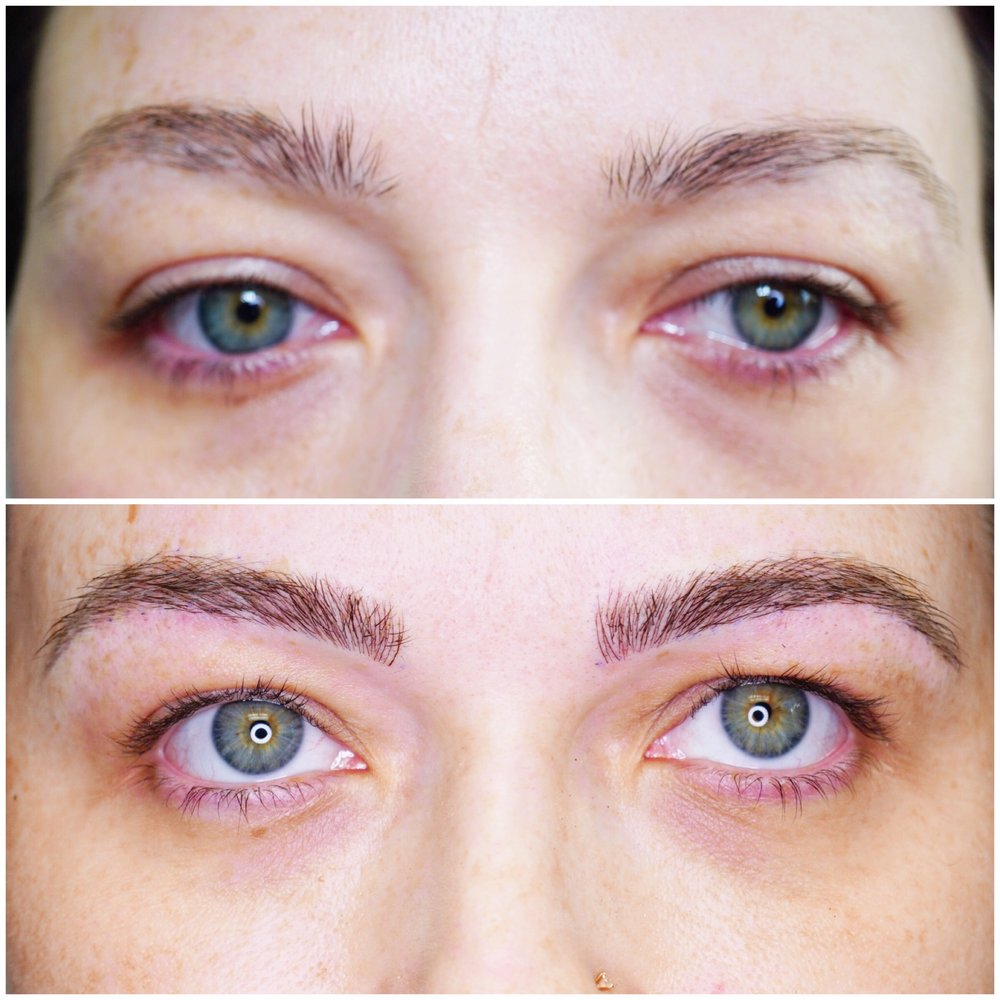 Trichotillomania before and after microblading