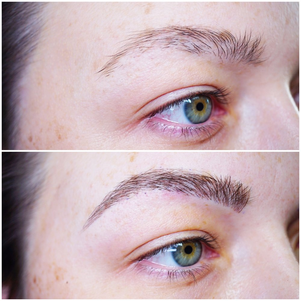 Trichotillomania before and after left brow microblading