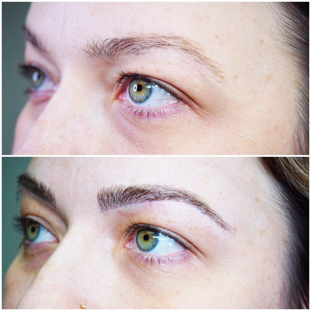 Trichotillomania before and after microblading right brow