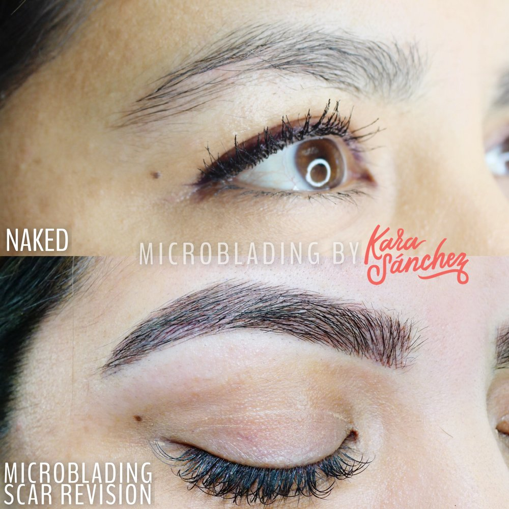 scar revision with microblading by Kara Sanchez.JPG