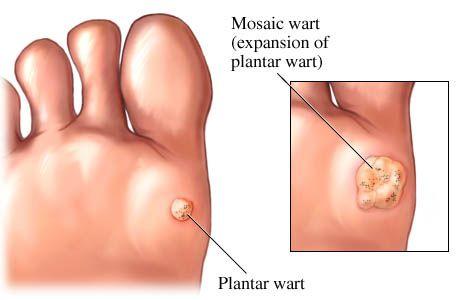 plantar-wart1.jpg