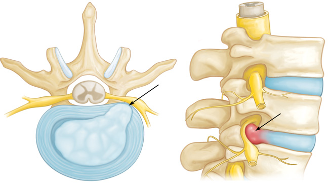 Disc Herniation and Nerve Pressure