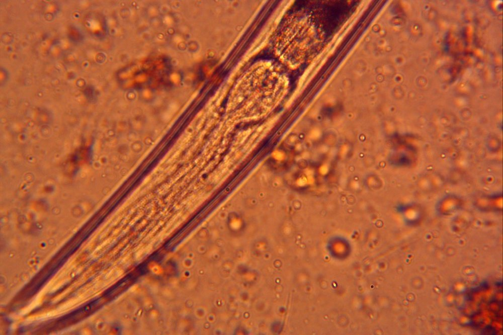 a soil nematode and its microscopic esophagus. boom.