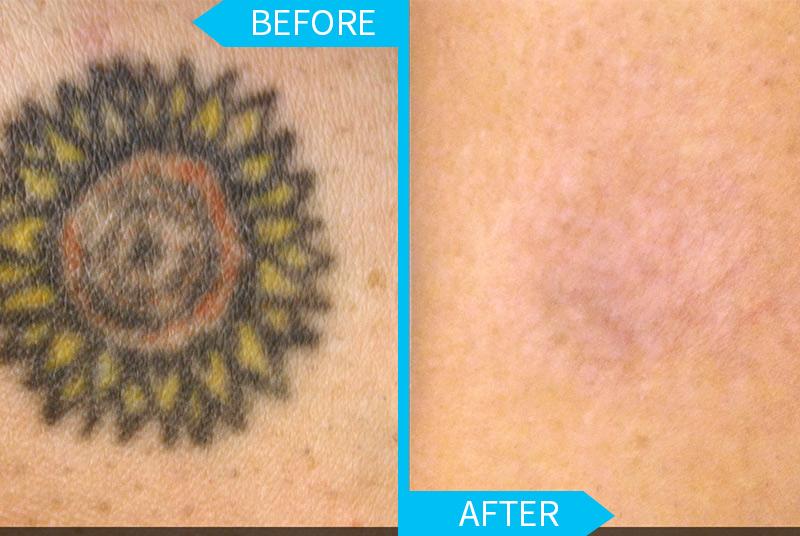 Laser tattoo removal las vegas
