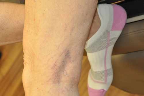 Vein Therapy Photo Gallery Click to View