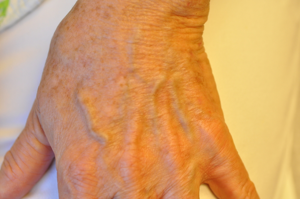 Patient After Treatments