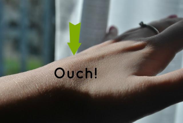 ruined+hand.jpg