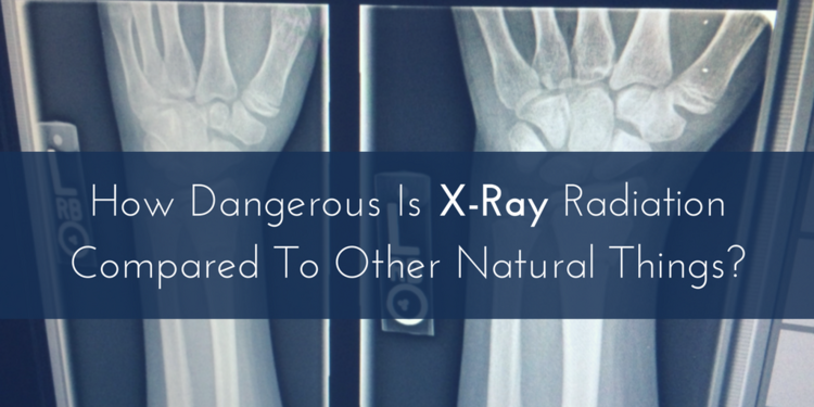X Ray Radiation >> How Dangerous Is X Ray Radiation Compared To Other Natural Things