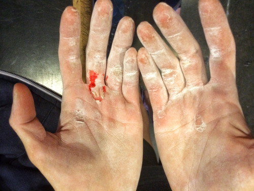 Flappers (ripping calluses) on my hands due to improper skin care after a long session training for sport climbing. Photo: Claire Bukowski