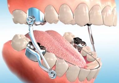 Herbst — Ellis Orthodontics