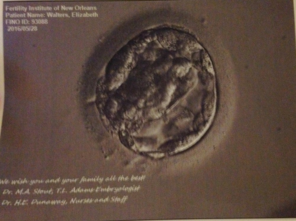 One of our two embryos transferred
