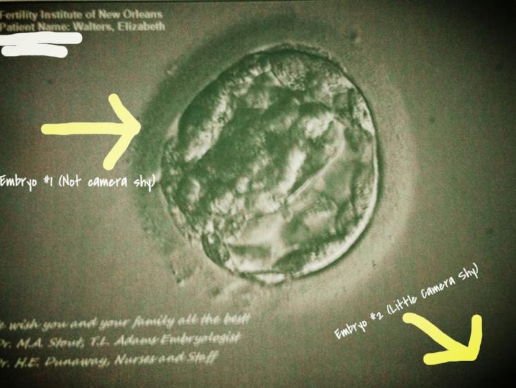 Embryo Loss