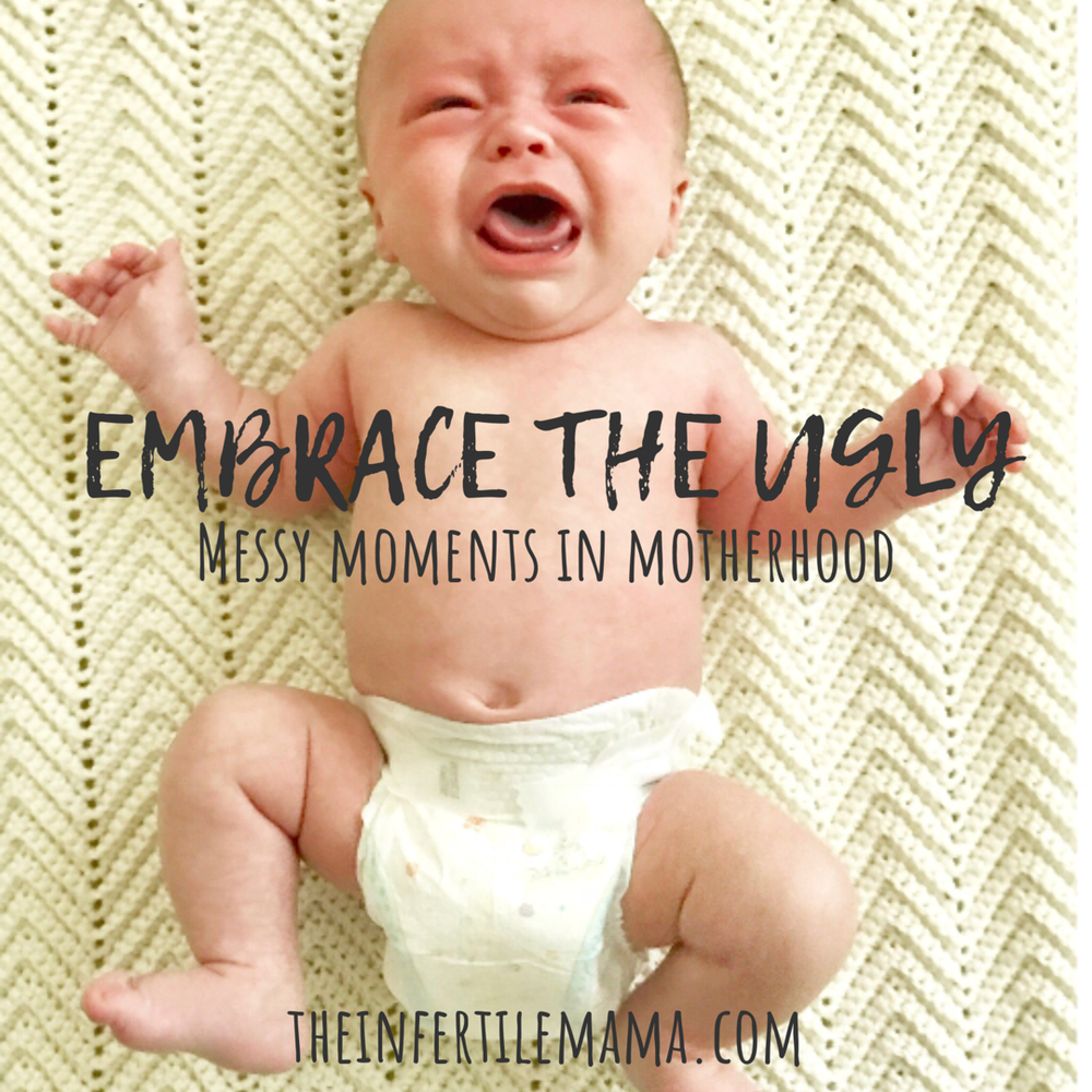 Embrace the Ugly | Messy Moments in Motherhood |  The Infertile Mama