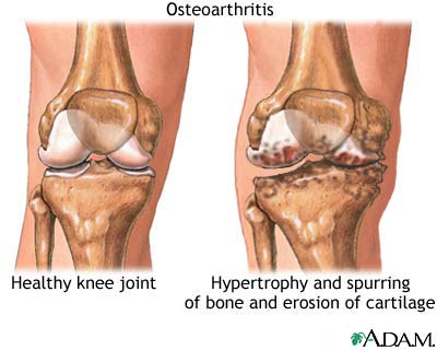 Photo © A.D.A.M, osteoarthritis.about.com