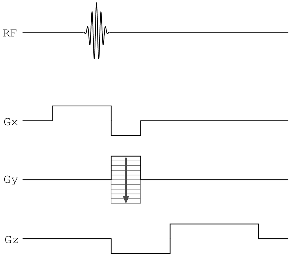 Pulse sequence diagrams using metapost tinker tailor soldier pulse sequence diagrams using metapost pooptronica Image collections