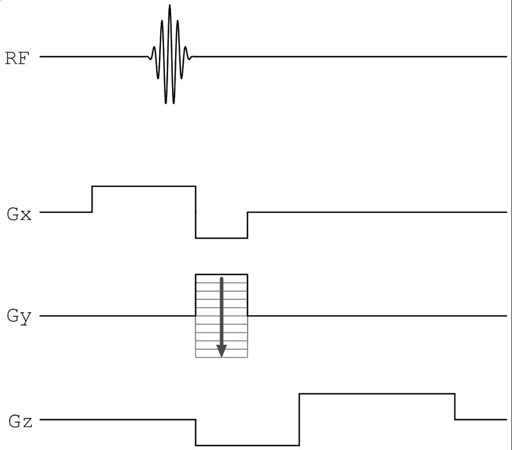 pulse sequence diagrams using metapost \u2014 ttss Uterine Fibroid Embolization Diagram