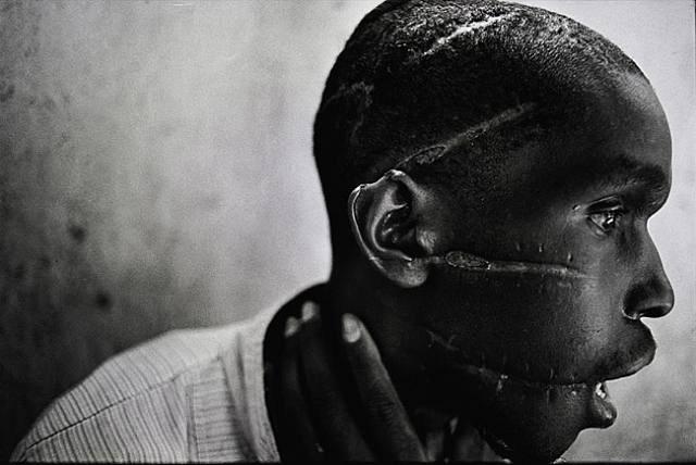 James Nachtwey, Rwandan genocide, 1994