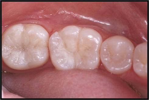 fillings-white-01.jpg
