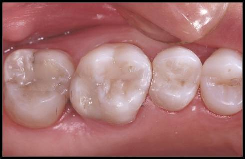 fillings-white-02.jpg