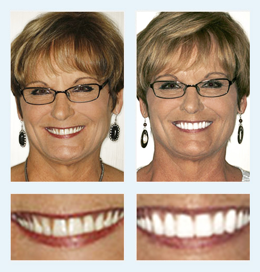 New You Dentures