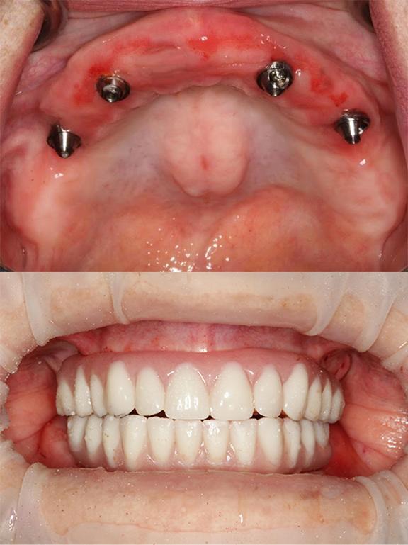 collage_teeth.jpg
