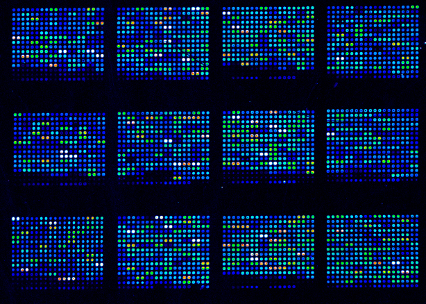 DNA Microarrays, a technology that is improving our understanding of breast cancer (thinkstock)