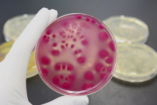 Typical e. coli bacteria