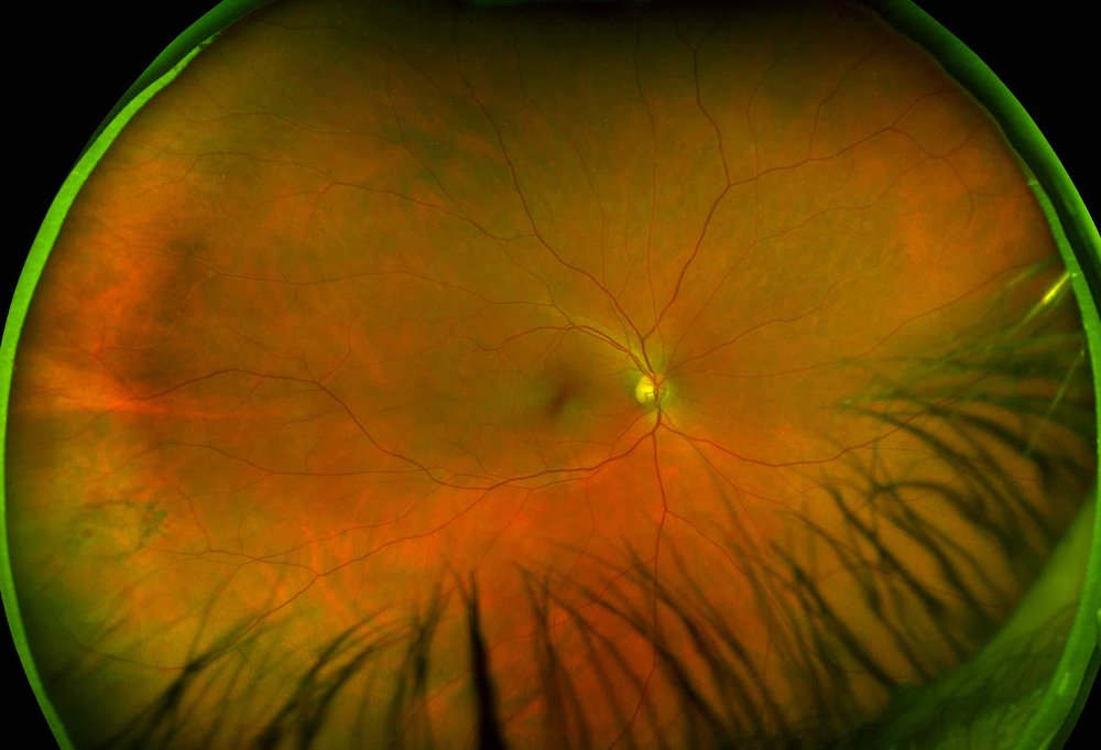 Retinal Screening -