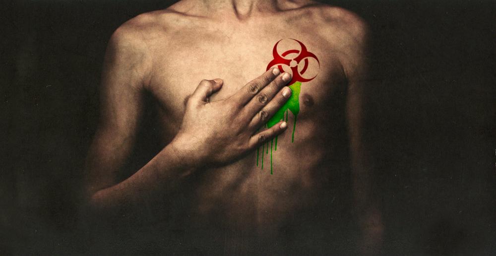 chest_toxic2.jpg