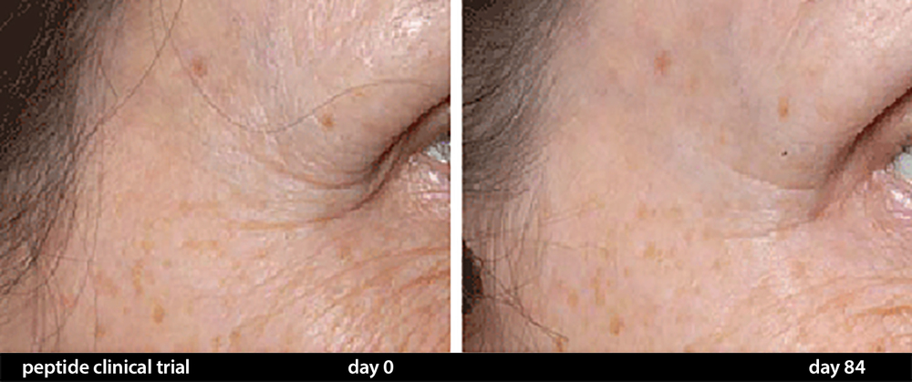 Anti Aging Results of CELSUS Scar Cream