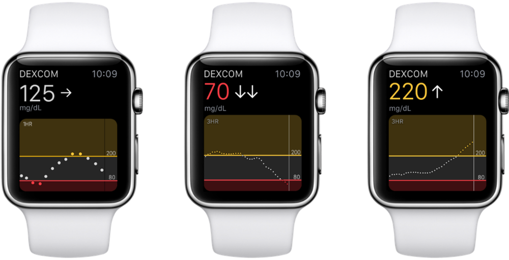 dexcom diabetes iot medtech device apple watch ios.png