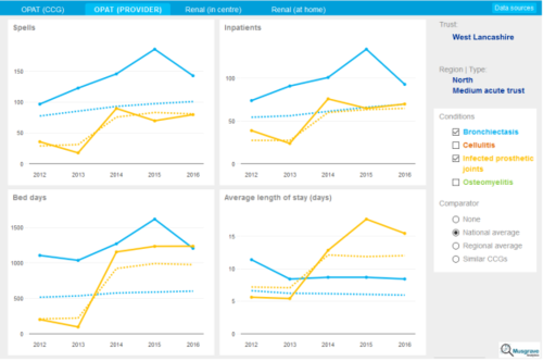 R Shiny vs  Power BI — Blog — Musgrave Analytics