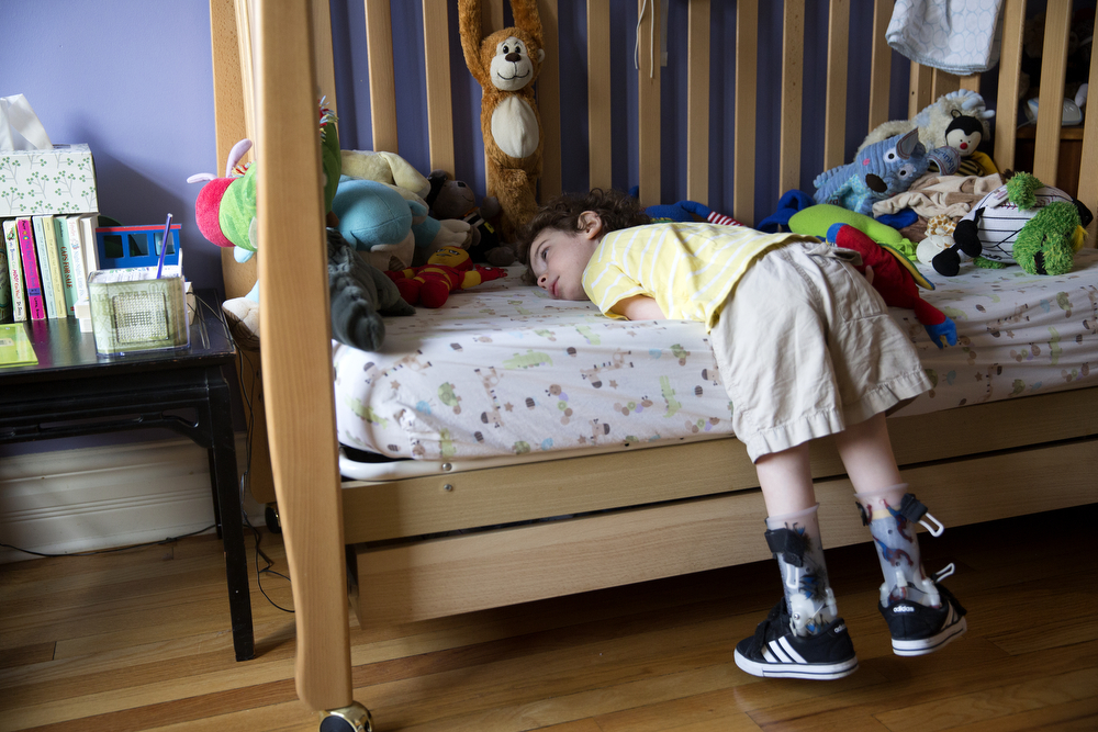 Aleck Persin, 3, rests on his bed at his home in Logan Square Wednesday, July 22, 2015. Aleck was born with arthrogryposis, a condition caused by multiple joint contractures and characterized by muscular fibrosis and inhibited movement of the joints. (Erin Hooley/Chicago Tribune)