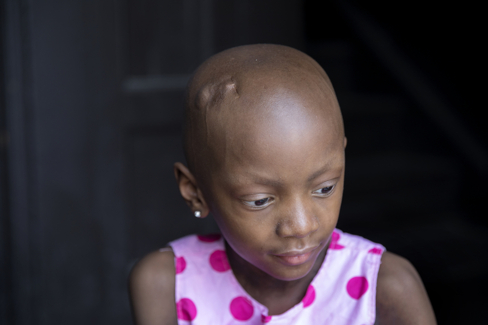 Jamela Anthony, 6, plays at her home Friday, July 7, 2017, in Chicago. Jamela has undergone extensive treatment for an aggressive tumor on her spinal cord that is now in remission. Her family has relied on Medicaid to cover costs. Tangela Watson, Jamela's mother, worries about how the Medicaid program might change if the Senate's Obamacare replacement bill becomes law. (Erin Hooley/Chicago Tribune)