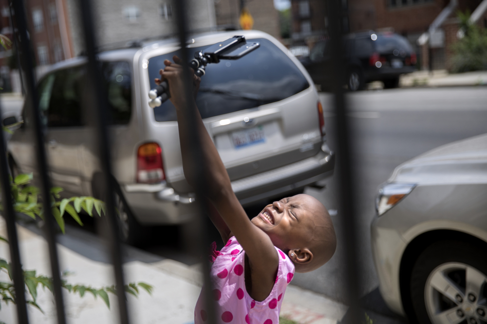 Jamela Anthony, 6, records herself at her home Friday, July 7, 2017, in Chicago. Jamela has undergone extensive treatment for an aggressive tumor on her spinal cord that is now in remission. Her family has relied on Medicaid to cover costs. Tangela Watson, Jamela's mother, worries about how the Medicaid program might change if the Senate's Obamacare replacement bill becomes law. (Erin Hooley/Chicago Tribune)