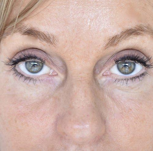 3d527f678 6 trin til et bedre syn - helt uden kirurgi — haro care