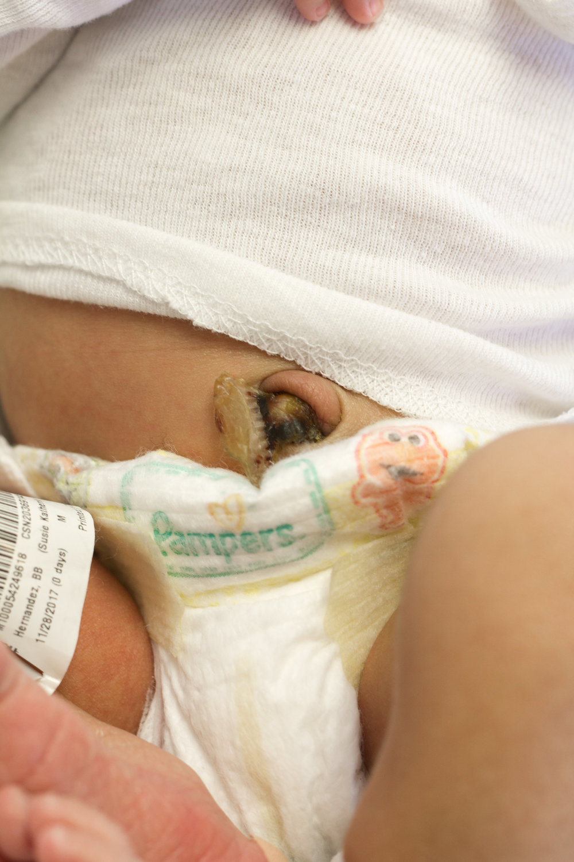Rex-hospital-newborn-photography-fresh-48-Rex-hospital-newborn-photographer-navel