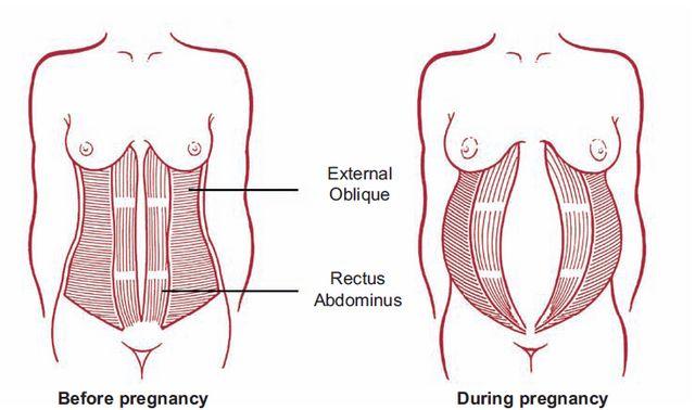 diastasis during pregnancy.jpeg