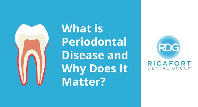 periodontal-gum-disease-dentist-murfreesboro