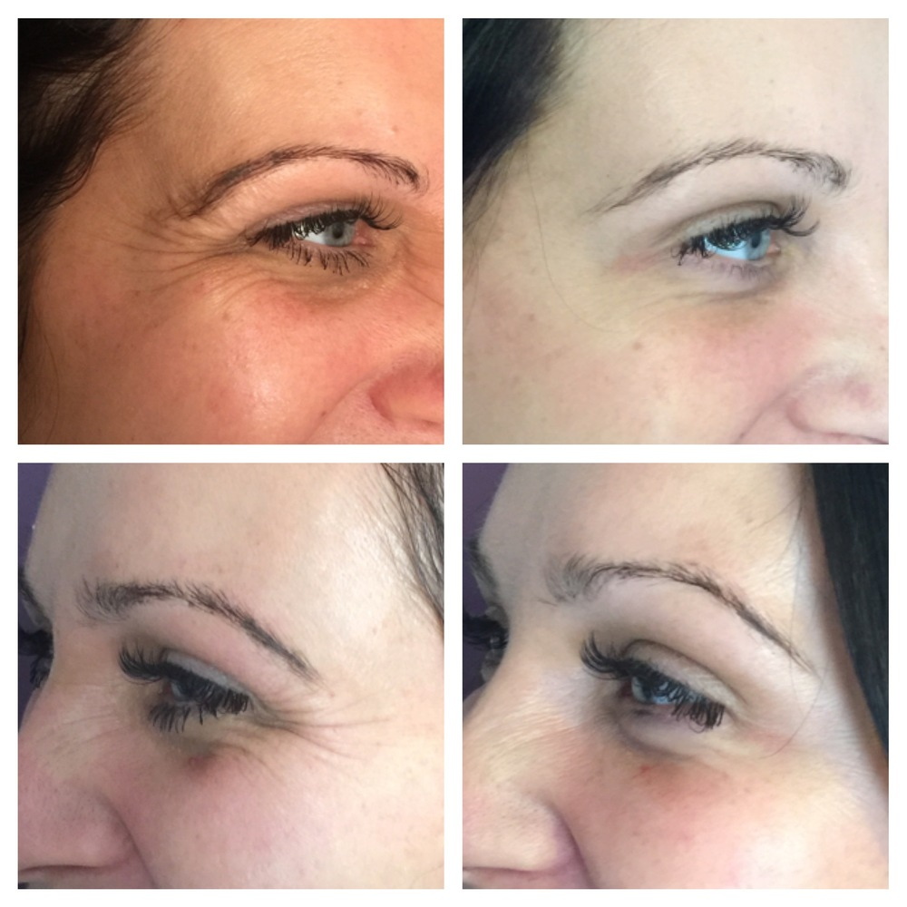 Crows Feet Reduction Treatment