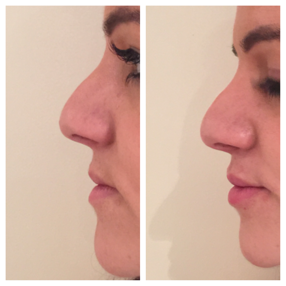 Before And After Lip Filler Photo