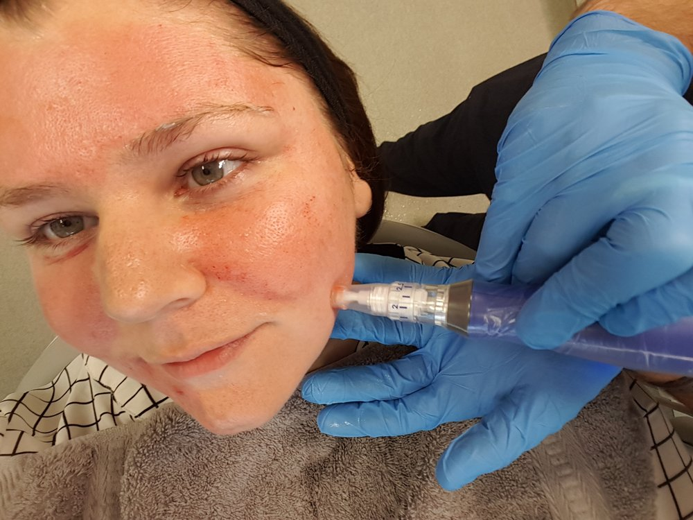 Microneedling in oxford