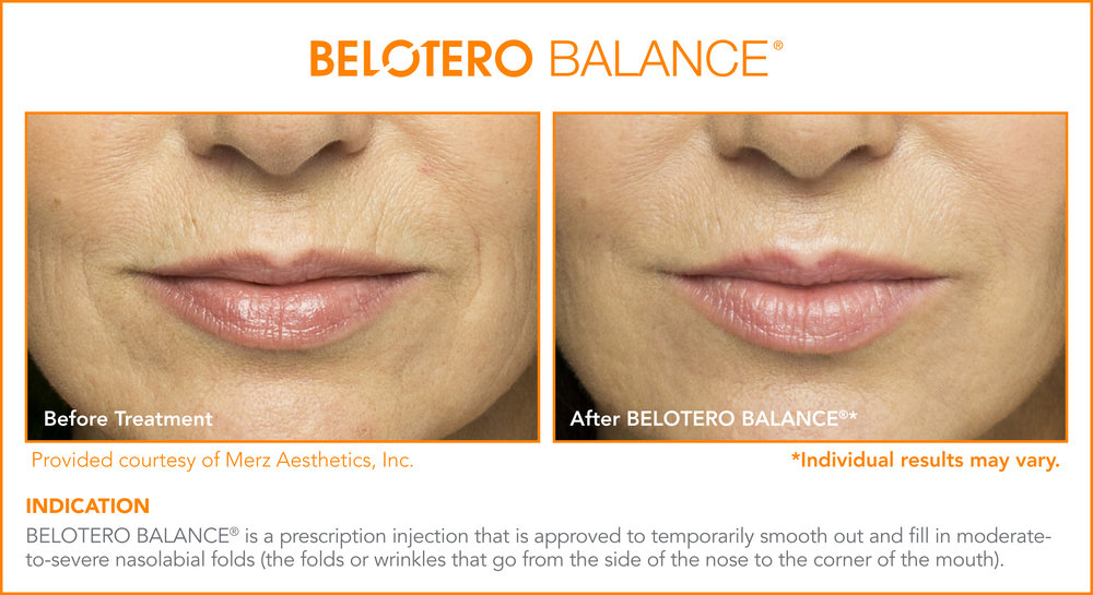 Belotero Dermal Treatments