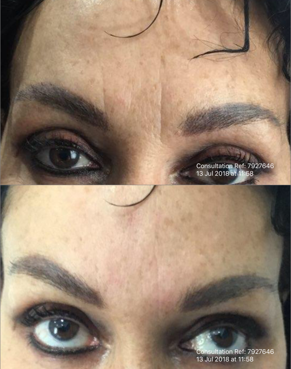 Botox and Dermal Filler Frown Treatment