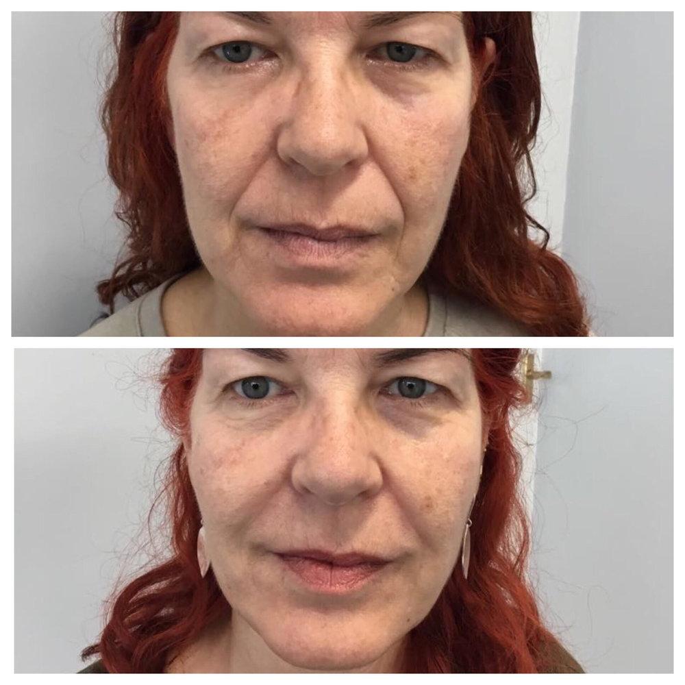 Natural Dermal Filler Treatment