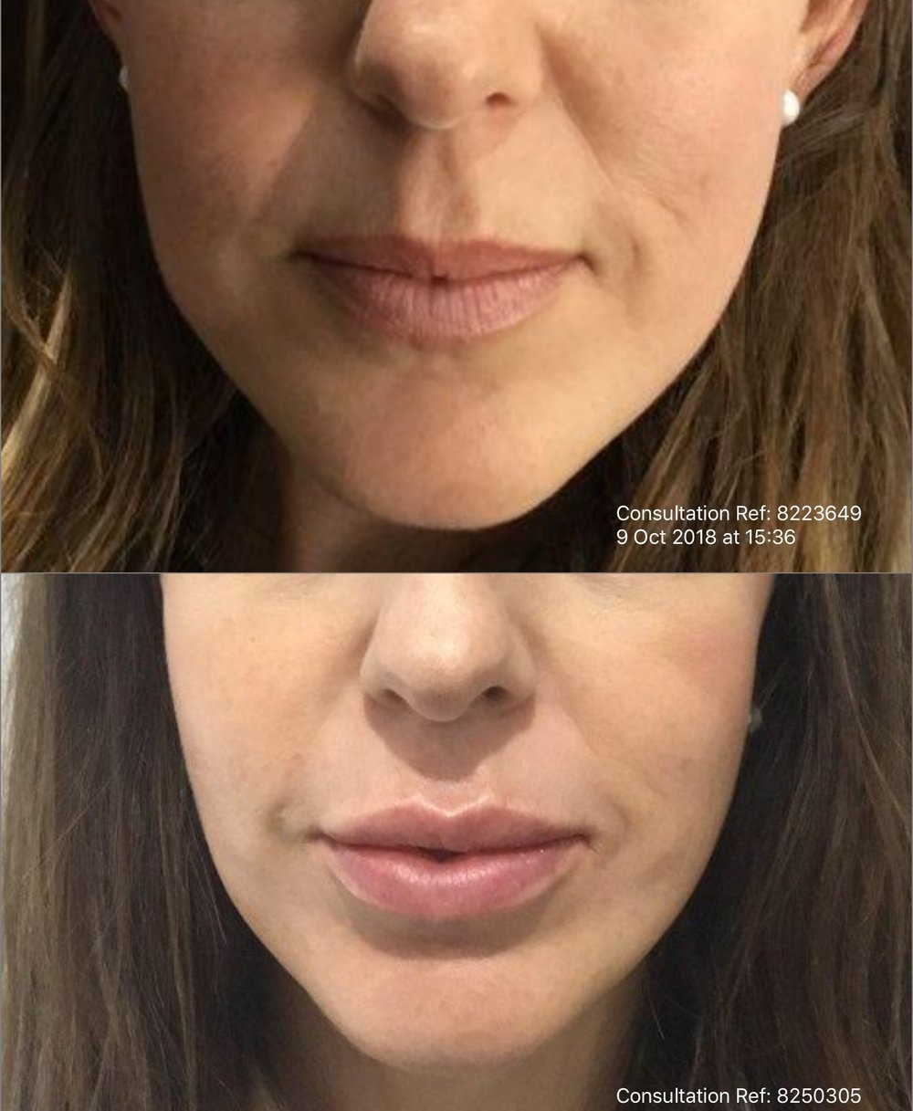 Immediate Before and After Dermal Filler