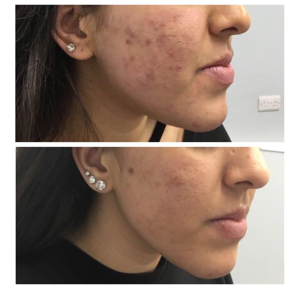 Acne Spots Skincare Results