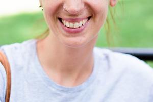 SmileProjectElena-17-WEB.jpg