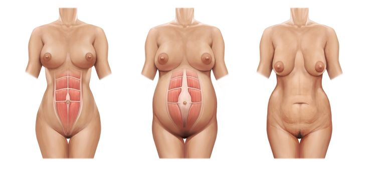"Left = normal, Middle = diastasis recti, Right = ""mommy tummy"" as a result of DRA postpartum"